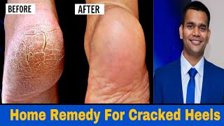Home Remedy To Get Rid Of  Cracked Heels Fast