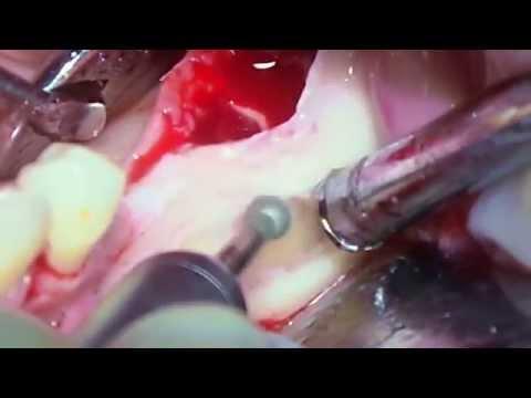 Удаление зуба мудрости без боли и осложнений Рекомендации