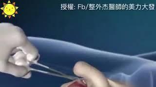 金星曾经做过的手术方式:男变女变性手术(这么残忍的手术,是该有多恨自己才能做的出来的啊!?)超级恐怖! thumbnail