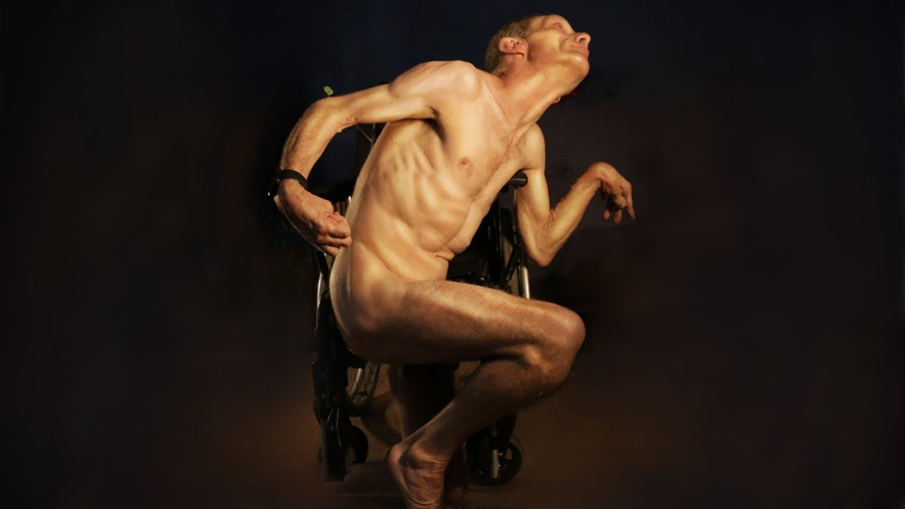 What it's like to act in porn when you have cerebral palsy