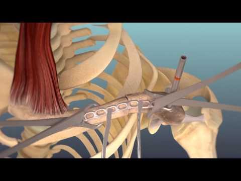 Osteosíntesis con placa a compresión de fractura de clavícula - Jorge Cuenca Espierrez