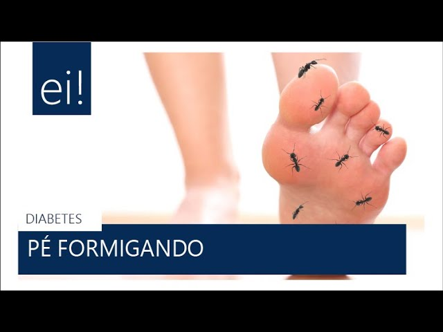 #DIABETES | Pé formigando no diabetes (Dra Fernanda Castro)
