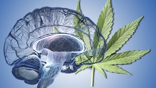 Pot Does This To Your Brain
