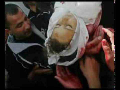 Palestinian children victims of war Zionist - emotional video
