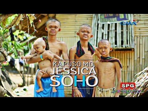 Kapuso Mo, Jessica Soho: The rare case of poreless skin in four siblings