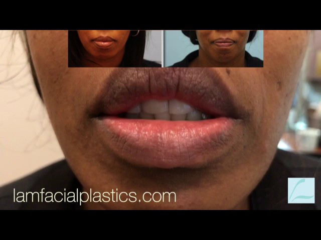 Lip Reduction 2X HD Video CloseUp of Scar in Dallas, TX
