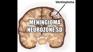 Meningioma Surgery.