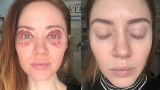 My Experience With VBeam Laser Treatment For Under Eye Veins