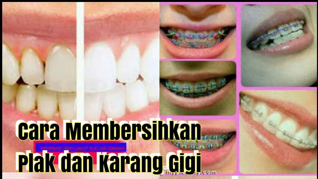 Cara Membersihkan Plak dan Karang Gigi secara Alami - YouTube 1185269ce6