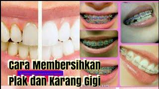 Cara Membersihkan Plak dan Karang Gigi secara Alami