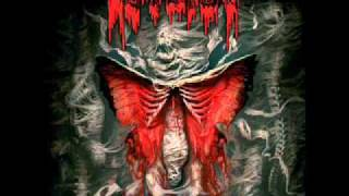 autopsy human genocide
