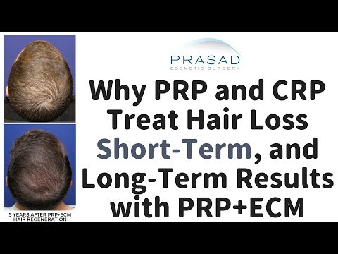 Why PRP and CRP Treatment for Hair Loss have Limited Longevity, and a Treatment that Lasts Years