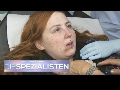 Pfusch bei AkneBehandlung? Gesicht total geschwollen!  Auf Streife  Die Spezialisten   SAT.1 TV
