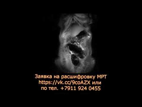 Болезни Крона и патологий кишечника на расшифровке МРТ не выявлено