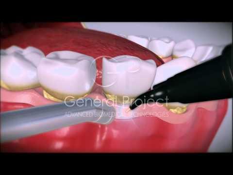 Periodontitis - GP Dental Laser System 4x4