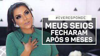 MEUS SEIOS FECHARAM APÓS 9 MESES - #EveResponde