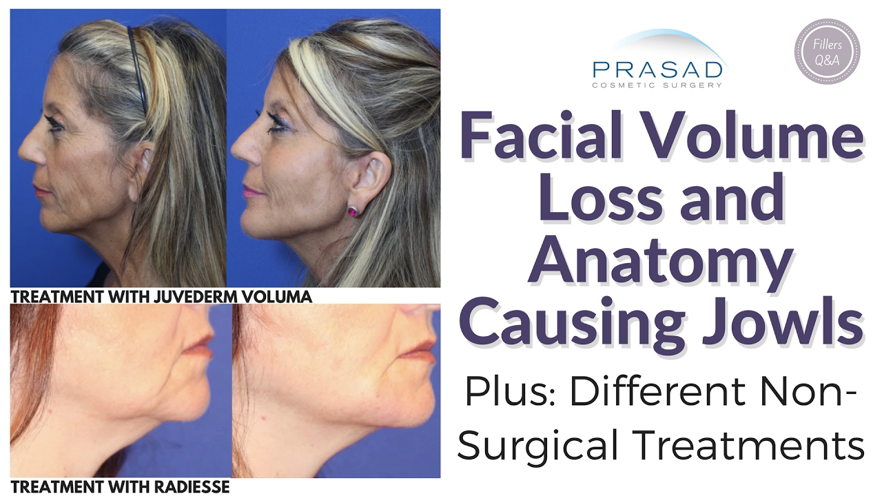 How facial volume loss causes jowls and non surgical options for how facial volume loss causes jowls and non surgical options for treatment ccuart Image collections
