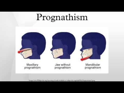 Prognathia definition of marriage