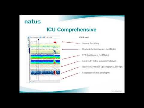 Natus EEG Webinar: NeuroWorks & Persyst Advanced ICU Solution