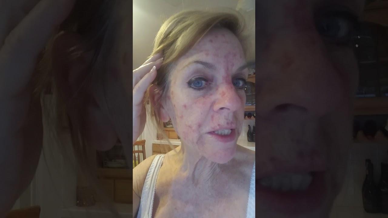Skin Cancer Fluorouracil Topical treatment - Tina Aranas