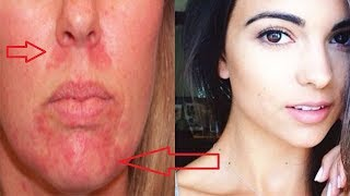 Home Remedies for Perioral Dermatitis- Get Rid Red Bumps Around the Mouth !
