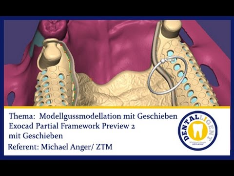 FREE EXOCAD TUTORIAL-FULL MOVIE - Modellgussmodellation mit Geschieben -in voller Länge 28 Min