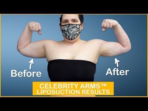 Arm Liposuction Immediate Results | Celebrity Arms™ | Lipo 360° Arms |Skin Tightening| Expert Dr. Su