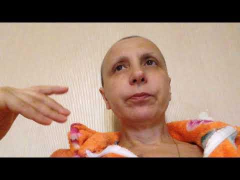 Лучевая терапия, последствия лечения