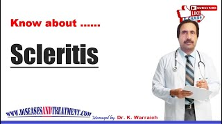 Scleritis : Causes, Diagnosis, Symptoms, Treatment, Prognosis