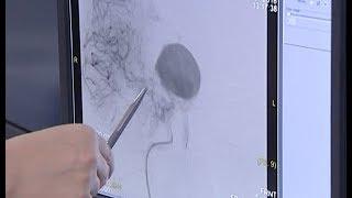 Удаление гигантской аневризмы сосудов головного мозга