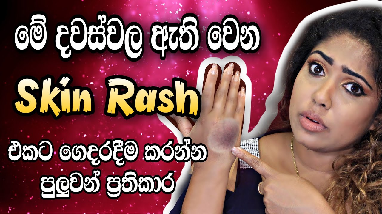 TREATMENT FOR SKIN RASH DUE TO SANITIZERS