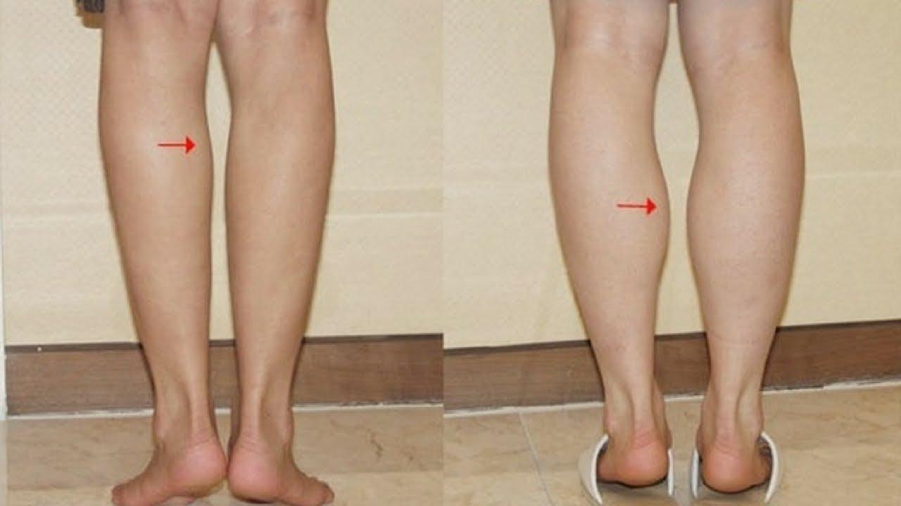 Nguyên nhân khiến bắp chân to ra dù nàng không hề tăng cân
