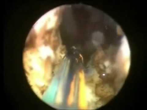 incisión transuretral de la próstata (tuip)