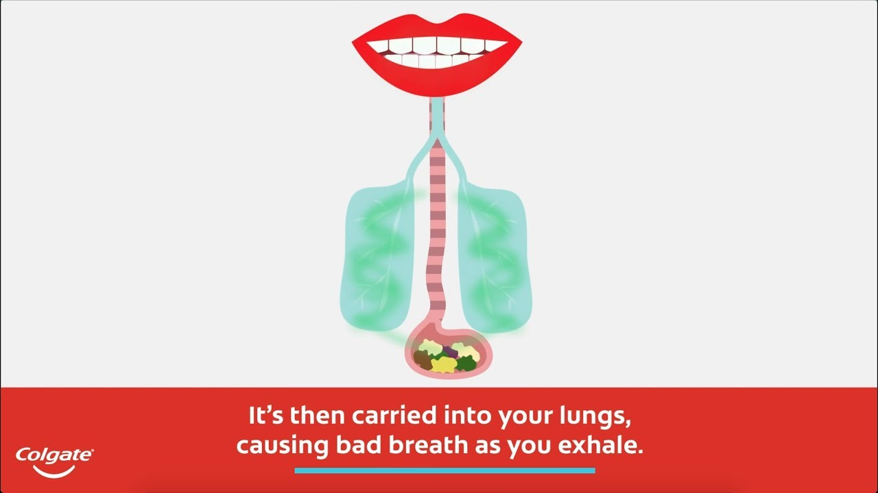 What Causes Bad Breath and Breath Odors? | Colgate Dental Health