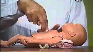 Cardiopulmonary Resuscitation infant