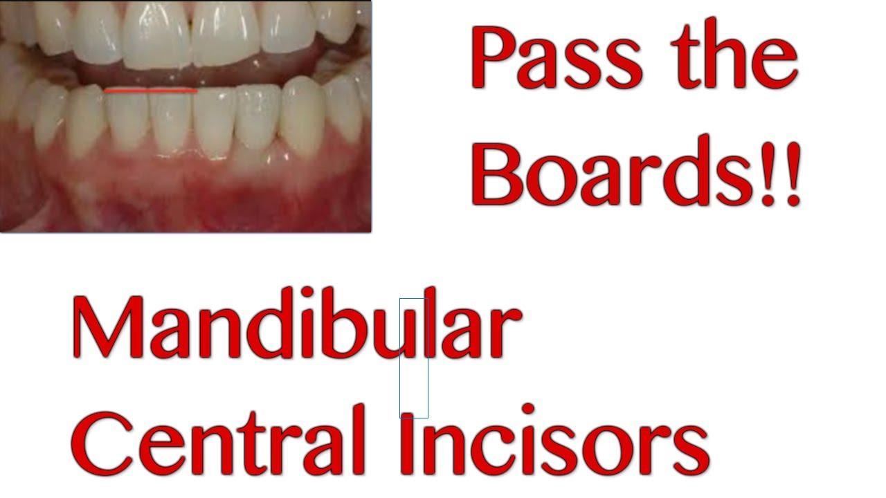 3 Mandibular Central Incisors Nbde Boards Study Youtube