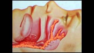 18-11-2015 Tratamiento de la Farmacologia en tos persistente - Dr. Gustavo Ordoñez