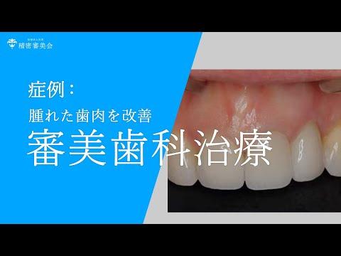 審美歯科治療腫れた歯肉改善 医精密審美会