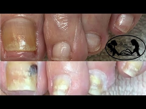 👣Pedicure Tutorial: How to Safely Cut Toenails Fungus Cure Update👣✔️