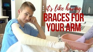 Brevin Gets a Cast || Operation Serve to Heal