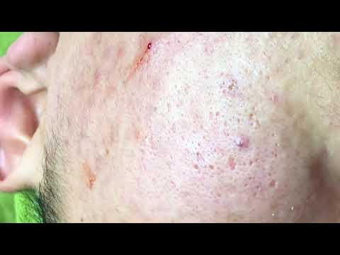 Acne Treatment Blackhead Extractions Popping #80