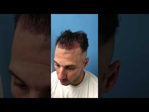 ARTAS iX Robotic FUE Procedure with Dr. Wolfeld Part 5