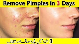 How To Get Rid Of Pimples & Acne Naturally