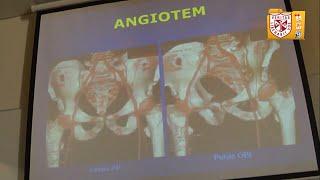 Tromboembolia mediante angiotomografia de diagnostico computada pulmonar