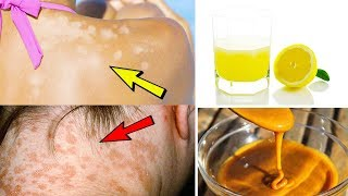 5 Effective Home Remedies For Treating Tinea Versicolor – Home Treatment  Of Tinea Versicolor