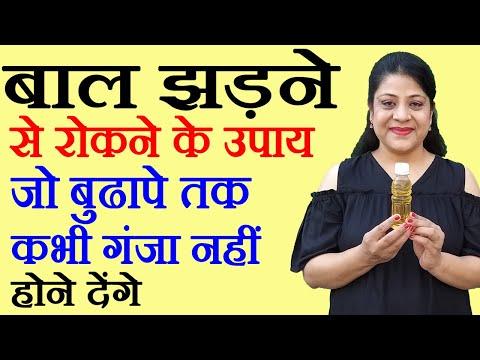 Hair Loss Treatment बाल झड़ने से रोकने के उपाय Beauty Tips in Hindi by Sonia Goyal #86