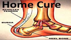Heel Bursitis - Home Treatment!