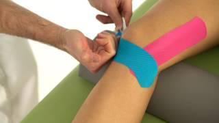 Theramaid Tapeanleitung Knie: Seitenband/Innenband