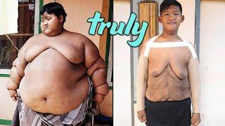'World's Heaviest Kid' Has Saggy Skin Surgery | TRULY