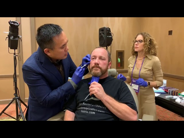 Dallas Live Filler Injection AAFPRS 12th International Symposium